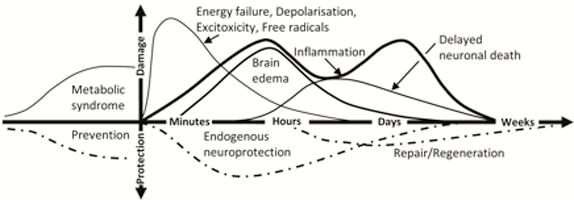 graph of chronology of stroke model